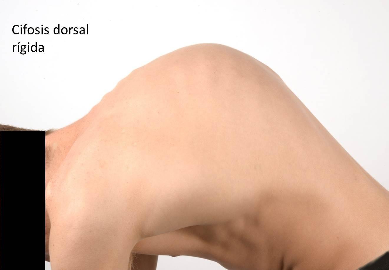 Los corsés para la presencia a todo la espalda